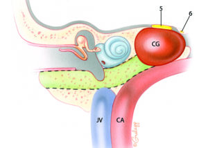 """The petrous apex is the medial portion of the petrous bone that lies between the inner ear and the clivus. Petrous """"apicectomy"""" is the term commonly applied to a procedure which reaches the apical portion of the petrous bone by skirting around the inner ear. It is inherently a drainage procedure which creates only a relatively small entry into the apical region. Thus, the commonly used term petrous """"apicectomy"""" is a misnomer when used in this context. Petrous apicotomy would actually be a more accurate description for the procedure. Petrous apicotomy is primarily indicated for drainage of cholesterol granuloma and purulent infections. Fundamentally, there are two routes used to reach the petrous apex: those which pass near the labyrinth and those which skirt the cochlea. In recent years, the hypotympanic–subcochlear route depicted here has become the most popular. The bone removed during this procedure is depicted in this schematic coronal illustration as the color green. Note the relationship of the apical cholesterol granuloma to the fifth and sixth nerves. This explains the frequent occurrence of deep ear and retro-orbital pain as well as diplopia in these lesions. JV, jugular vein; CA, carotid artery; CG, cholesterol granuloma; 5, trigeminal nerve; 6, abducens nerve."""