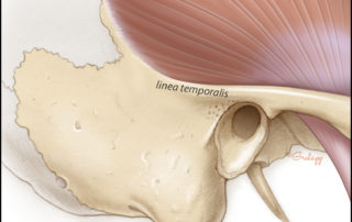 The relationship between the temporalis muscle and the linea temporalis.