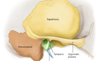 four osseous components of the temporal bone from lateral perspective.
