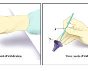 Incorrect hand position for ear microsurgery, which is less stable and limits visibility. The correct hand position has three-point stabilization.