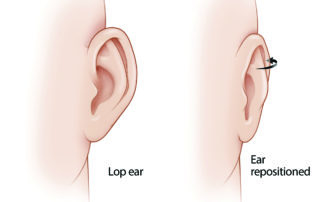 In closing a postauricular incision following tympanomastoid procedures, the pinna may rotate outward and develop a cosmetically undesirable prominence (i.e., lop ear). This is especially the case in children due to the flexibility of their cartilage.