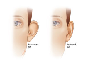 A prominent ear can be caused by lack of an antihelical fold or prominence of the conchal cartilage, or both. Otoplasty can be used to correct both of these, resulting in a less prominent pinna on frontal view.