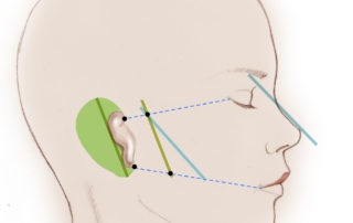 Markings for the planned placement of the reconstructed ear are kept in view throughout the procedure.
