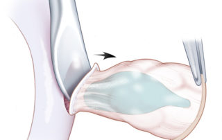 A freer elevator or scalpel can facilitate the removal of the cartilage from the undersurface of the skin of the cymba concha.