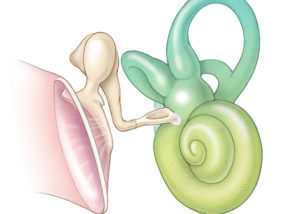 Schematic coronal view of the middle and inner ear showing a fixed stapes due to an otosclerotic plaque at the anterior margin of the oval window.
