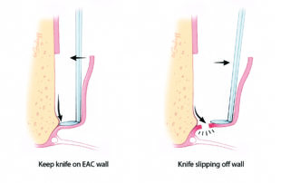 To avoid tearing of the flap or tympanic membrane, it is necessary to maintain continuous pressure with the stapes knife against the bony canal. Allowing the stapes knife to disengage from the canal wall risks tearing the flap. EAC, external auditory canal.