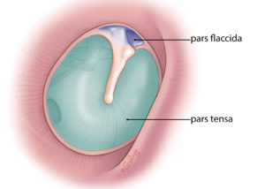 Pars tensa and pars flaccida of the tympanic membrane. The pars tensa has three layers: lateral stratified squamous epithelium, central fibrous layer, and medial low cuboidal mucosal epithelium. The pars flaccida is deficient in its fibrous layer.