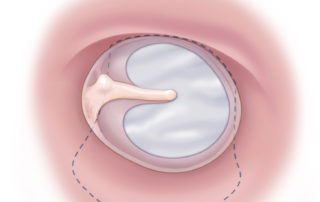 Classical medial fascia graft tympanoplasty with insufficient purchase anteriorly has a higher rate of failure.