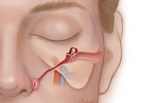 Frontal view of Eustachian tube. Eustachian tube is a curved structure that is usually at a 30-degree angle from the middle ear cavity and curves anteriorly toward the nasopharynx.