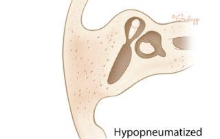 Hypopneumatized mastoid: axial view.