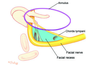 Schematic representation of the relationships of the facial recess and the middle ear exposure afforded by its opening (blue).