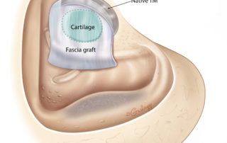 Typical cartilage and fascia reconstruction in a canal wall down mastoidectomy. The skin flaps are not shown.