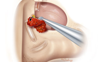 Cautiously removing granulation tissue from an exposed facial nerve. If the dissection proves difficult or complex, it is better to stage the procedure and return once the inflammation has abated.
