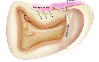 Branches of the facial nerve which provide sensation to the conchal bowl may be seen on the ear canal. The digastric ridge is a useful landmark in identification of the facial nerve at the stylomastoid foramen. The digastric ridge is the bony protuberance crossing the mastoid, just above the mastoid tip, made by the posterior belly of the digastric muscle.