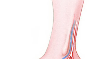 When an unusually long nerve graft is required, the sural nerve can be harvested from the leg. This nerve courses behind the lateral malleolus in proximity to the lesser saphenous vein. The donor deficit consists of anesthesia of the heel region. The sural nerve is usually larger in diameter than the facial nerve. This makes it particularly suitable for defects which span the pes anserinus and require a branched graft.