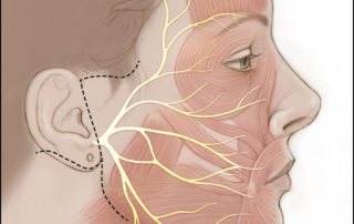 The anatomy of the facial nerve is shown as it travels toward target muscles in the face. Also shown are typical facial incisions for combined hypoglossal-to-facial nerve and masseteric-to-facial nerve transfer procedures for facial reanimation in cases of chronic facial paralysis.